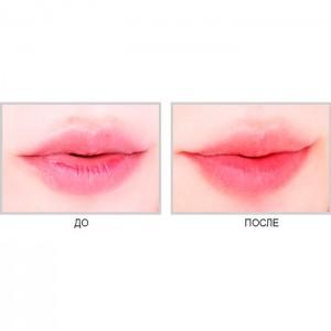 Маска-патч для губ с коллагеном BERRISOM Sos My Lip Patch - 1 шт