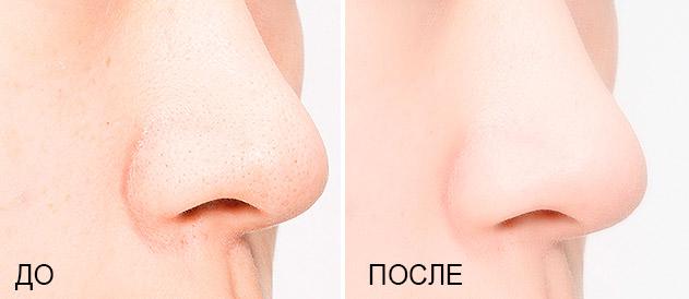 Очищающие трехступенчатые патчи для носа MISSHA Super Aqua Mini Pore 3-Step Nose Patch