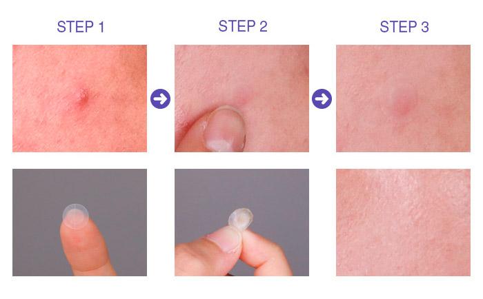 Патчи от прыщей MIZON Bye Bye Pimple Patch